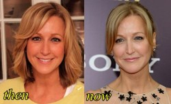 Lara Spencer Plastic Surgery Before and After Nose Job