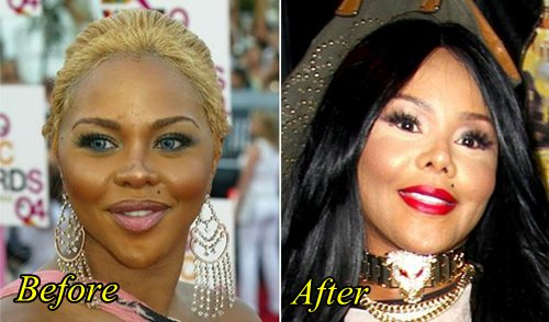 Lil Kim Plastic Surgery Before and After Pics