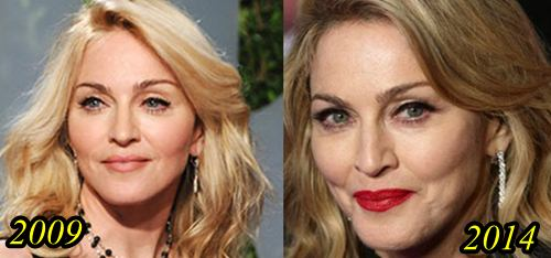 Madonna Plastic Surgery Before and After - Plastic Surgery Hits