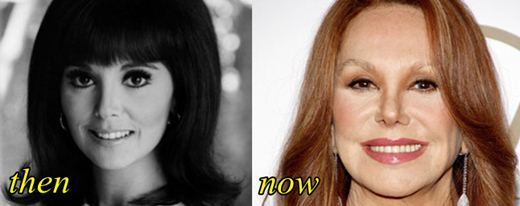 Marlo Thomas Plastic Surgery Before and After Botox, Facelift