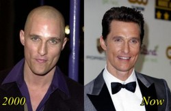 Matthew Mcconaughey Plastic Surgery Before After Hair Transplantation