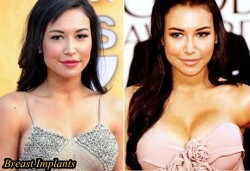 Naya Rivera Plastic Surgery Before and After Breast Implants