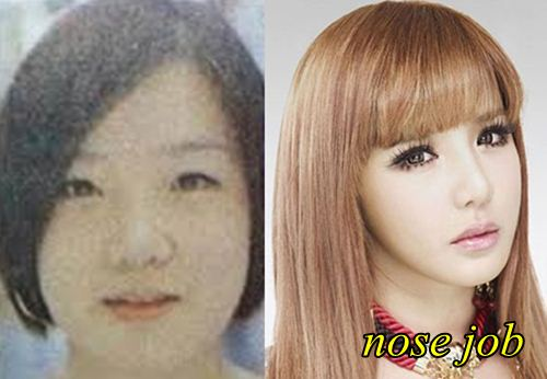 Park Bom 2NE1 Plastic Surgery Nose Job