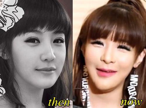 Park Bom 2NE1 Plastic surgery