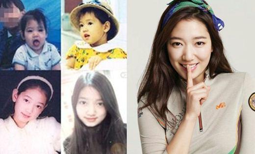 Park Shin Hye Plastic Surgery Rumor