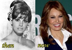 Raquel Welch Plastic Surgery