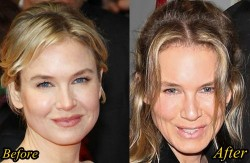 Renee Zellweger Plastic Surgery Before and After