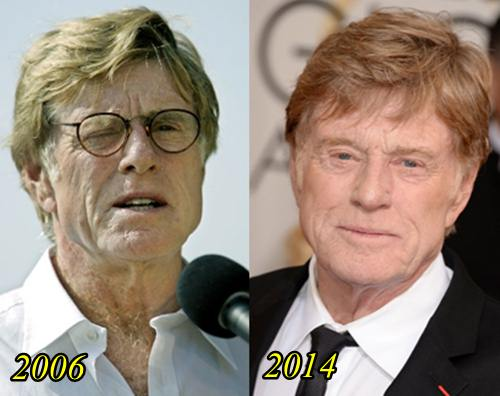 Robert Redford Plastic Surgery Facelift