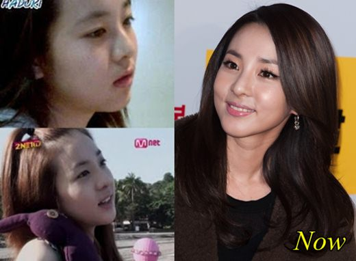Sandara Park 2NE1 Plastic Surgery Before and After