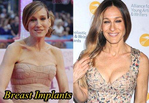 Sarah Jessica Parker Plastic Surgery Breast Implants