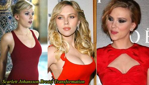 Scarlett Johansson Plastic Surgery Before After Breast Implants and Breast reduction