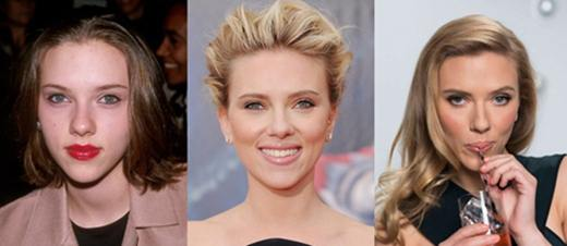 Scarlett Johansson Plastic Surgery Nose Job