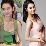 Young Breast Augmentation Before And After Shin Min Ah Plastic Su...