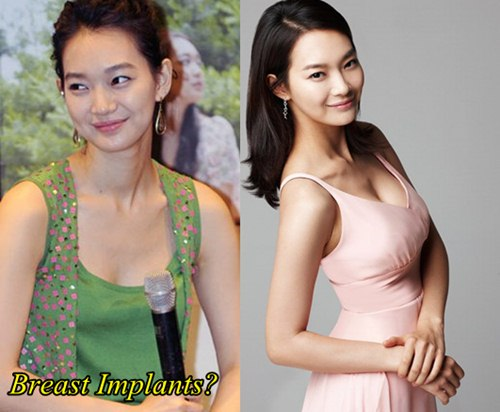 Shin Min Ah Plastic Surgery Before and After Breast Implants