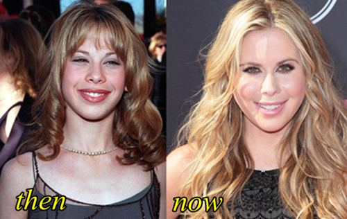 Tara Lipinski Plastic Surgery Before and After
