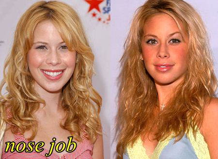 Tara Lipinski Plastic Surgery Nose Job