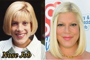 Tori Spelling Plastic Surgery Nose Job