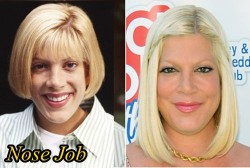 Tori Spelling Plastic Surgery Nose Job