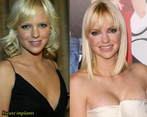 Anna Faris Plastic Surgery Before After Breast Implants