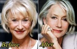 Helen Mirren Plastic Surgery