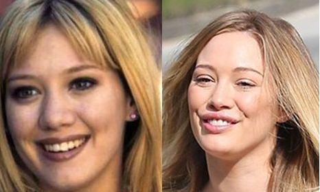Hilary Duff Lip Injection