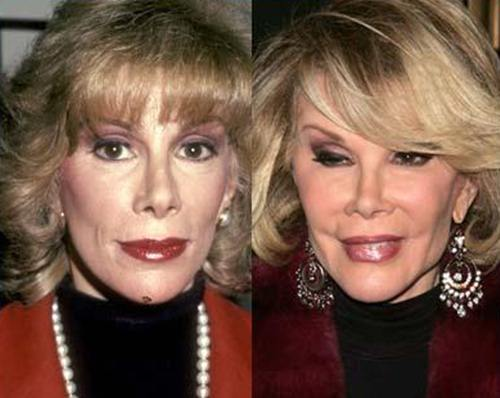 joan rivers before and after plastic surgery