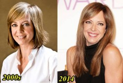 Allison Janney Plastic Surgery Before and After