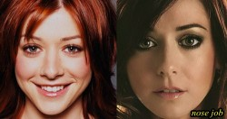 Alyson Hannigan Nose Job