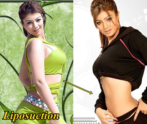 Ayesha Takia Before and After Liposuction