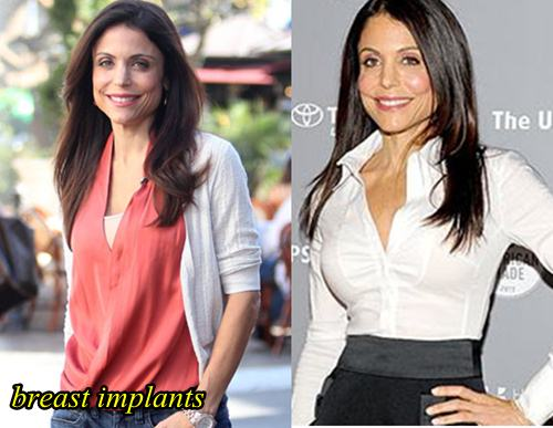 Bethenny Frankel Plastic Surgery Before and After Breast Implants