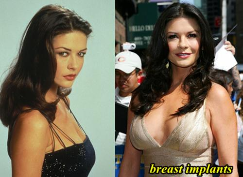 Catherine Zeta Jones Breast Implants