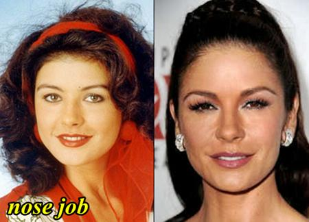 Catherine Zeta Jones Nose job