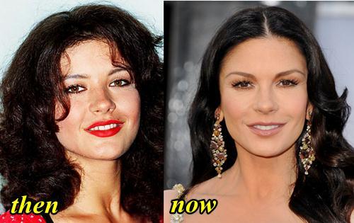 Catherine Zeta Jones Plastic Surgery Before and After