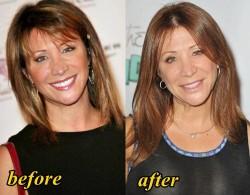Cheri Oteri Plastic Surgery