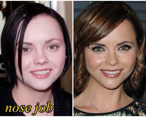 Christina Ricci Plastic Surgery Nose Job