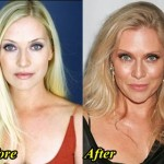 Have thought emily procter plastic surgery before after apologise