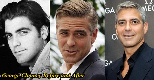 George Clooney Plastic Surgery