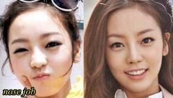 Goo Hara Plastic Surgery Nose Job