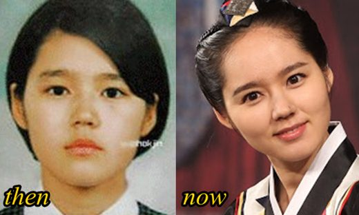 Han Ga In Plastic Surgery Before After