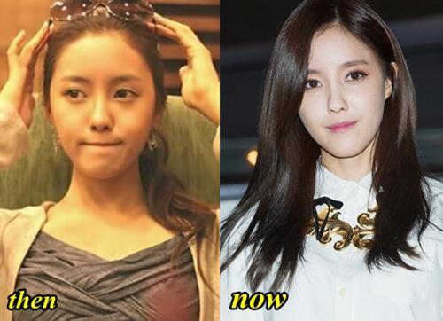 Hyomin T-ARA Plastic Surgery