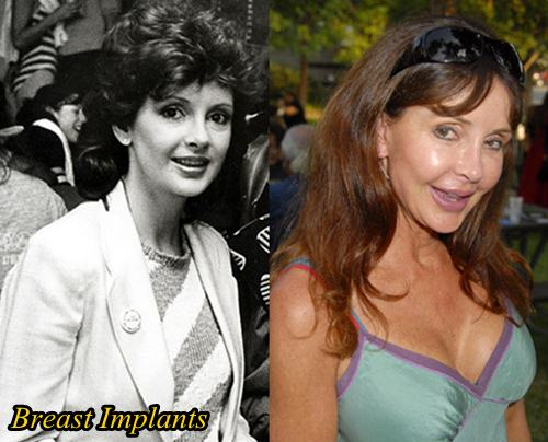 Jackie Zeman Plastic Surgery Before and After