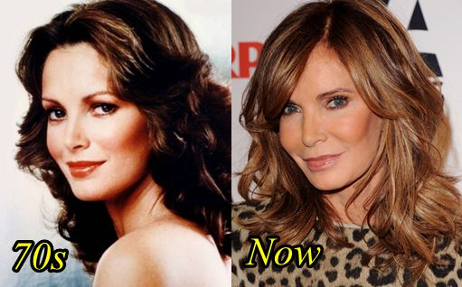 Jaclyn Smith Plastic Surgery Before and After Picture