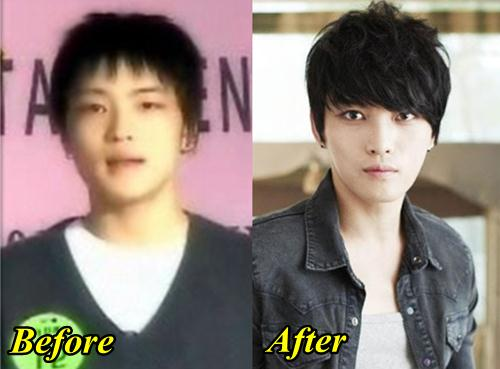 Jaejoong Plastic Surgery Before and After