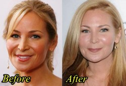 Jennifer Westfeldt Plastic Surgery Before and After