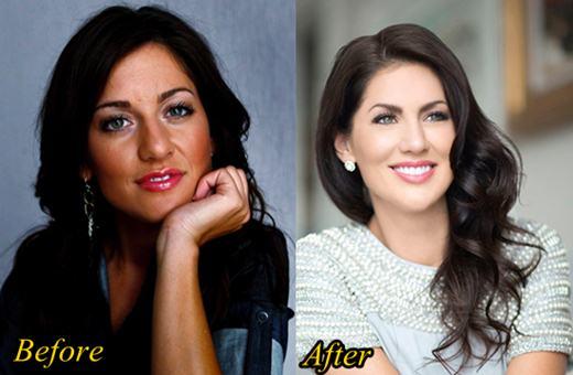 Jillian Harris Plastic Surgery Nose Job
