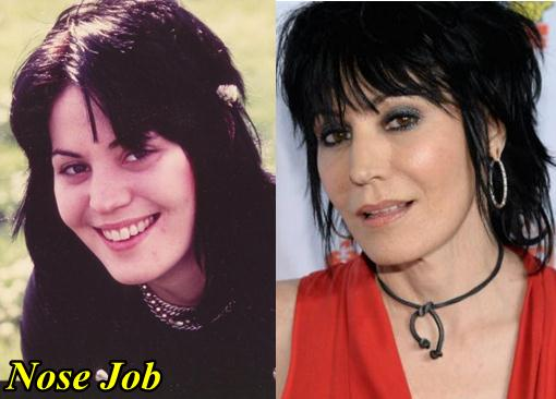 Joan Jett Plastic Surgery Nose Job