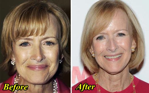 Judy Woodruff Plastic Surgery Before and After