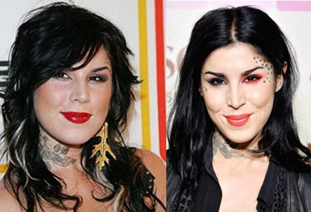 Kat Von D Plastic Surgery Before and After