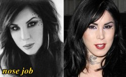 Kat Von D Plastic Surgery Nose Job
