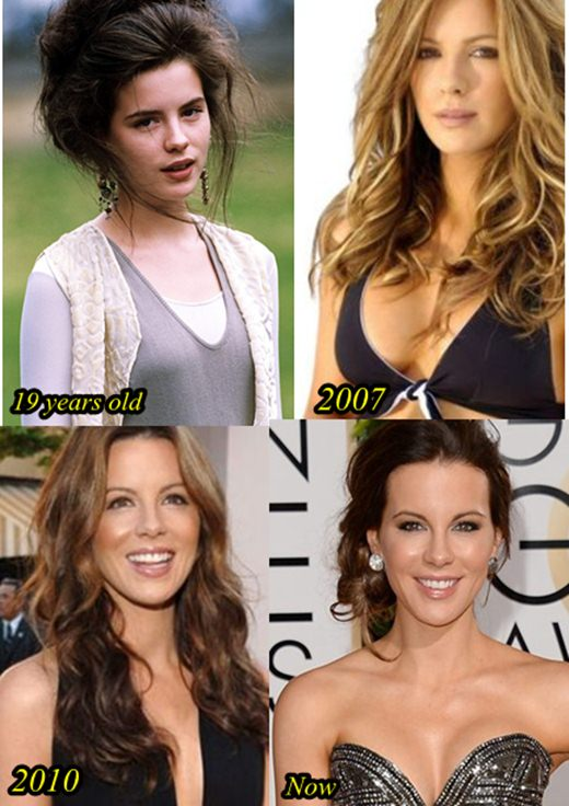 Kate Beckinsale Plastic Surgery Breast implants